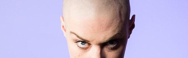 dreamdiary-baldness
